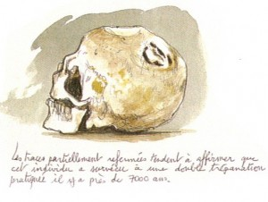 trépanation c.heinich